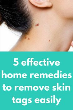 5 effective home remedies to remove skin tags easily Tea tree oil To use tea tree oil to treat your skin tags, simply put a few drops of oil on a cotton ball. Lightly rub it on the skin tag in circular motions. Apply twice a day until the skin tag disa Acne Scar Removal, Skin Tag Removal, Mask For Oily Skin, Oils For Skin, Skin Care Routine Steps, Skin Care Tips, Apple Cider Vinegar Cellulite, Skin Tags On Face, Clear Skin Overnight