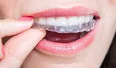 #Low #cost #invisible #braces #in #Dallas  Invisible braces allow you to straighten your teeth without using metal braces. These invisible braces help you to boost Your confidence by improving your smile. Visit :- http://www.stewarthefton.com/invisible-braces-in-dallas-tx/