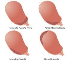Placenta previa schematic