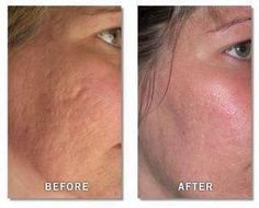Before and After Pics / Acne Scarring  Rodan and Fields Reverse and Macro Exfoliator Make Huge Improvements for Your Skin!