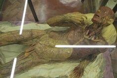 cera che mostra i vasi linfatici del corpo umano