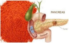 The Household Spice That Can Destroy Cancer Cells And Prevent Heart Attacks Heart Diet, Heart Healthy Diet, Heart Healthy Recipes, Colon Cancer, Cancer Cells, Breast Cancer, Ant Crafts, Common Spices, Prevent Heart Attack