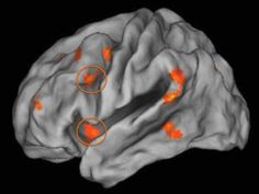 Growing Up Poor, Stressed Impacts Brain Function as Adult