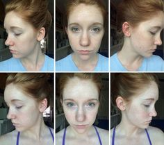 Malibu C Skin Care: How one MODERN SALON editor finally fixed her skin issues.  #skincare #skin #acne #malibuc #blog