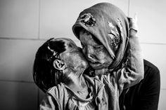 An Iranian woman and her 3 year old daughter, disfigured from an acid attack from the husband/father.