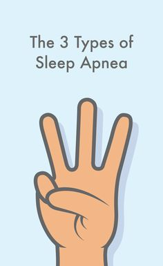 Sleep apnea is a serious condition that can be fatal if not treated properly. It is a sleep disorder in which improper pauses in breathing during sleep disrupts a person's daily functioning. Finding the right cure for sleep apnea can be crucial in. Types Of Sleep Apnea, Causes Of Sleep Apnea, Sleep Apnea Remedies, Insomnia Causes, Sleep Apnea Treatment, Snoring Remedies, How To Sleep Faster, How To Get Sleep, Sleep Better
