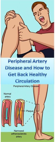 Peripheral artery disease and how to get back healthy circulacion!
