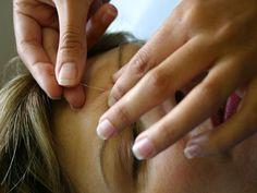 É possível realizar sessões de acupuntura, um recurso terapêutico da medicina oriental que consiste na inserção indolor de agulhas de diversos tipos.