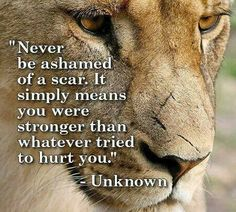 With MS you may get scars, but it means you are Stronger than anything that tries to Fight you! Stay Positive/Optimistic & Hope for a Cure