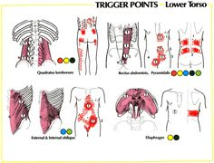 Treatment For Lower Back Strain Lower Back Pain Referral Patterns Sciatica Pain, Sciatic Nerve, Neuromuscular Therapy, Trigger Point Therapy, Hand Massage, Massage Room, Neck And Back Pain, Massage Benefits, Muscle Spasms