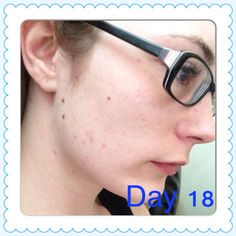 Day 18. Gotta get rid of this acne scarring.