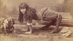 Em séculos passados, pessoas com deformações ou outras limitações de saúde eram exploradas em números de circo. Os shows bizarros rendiam bons ganhos para os donos dos estabelecimentos na época.