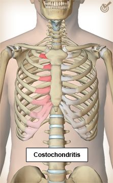 costo chondritis | Proulx, A.M. & Zyrd, T.W. (2009). Costochondritis: Diagnosis and ... Shape Fitness, Health Fitness, Costochondritis, Vital Signs, Chronic Pain, Body Shapes, Van, Feelings, Skeletal System