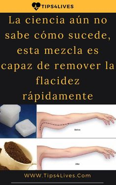 Tips Life vida Beauty Skin, Health And Beauty, Tips Belleza, Beauty Routines, Cellulite, Healthy Tips, Skin Care Tips, Body Care, Beauty Hacks