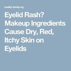 Eyelid Rash? Makeup Ingredients Cause Dry, Red, Itchy Skin on Eyelids