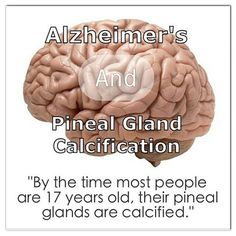 Alzheimer's disease is running rampant throughout the modern world now, but even with pharmaceutical companies spending billions on drugs to 'cure' it, they have failed miserably. While the use of coconut oil for Alzheimer's disease is proving beyond beneficial, the answer to really treating this disease may lie in the pineal gland (third eye) and the decalcification of one of the most important elements of the endocrine system.  A new study looks at intracranial calcifications in the brains…