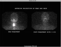 THYROID ABLATION WITH I-131. http://www.sarmc.org/images/nuclear_image_Thyroid%20Cancer.jpg