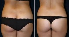 If you want to know about Dr Platis and tummy tucks just click this photo for more information ....