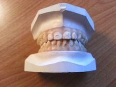 Dental study model Life Like cast Upper & Lower Gum and Teeth #DentalProducts