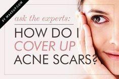 Ask the Experts: How do I Cover Up Acne Scars? .Makeup.com