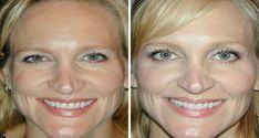 natural-botox-treatment-