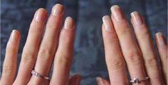 WOW! C'est cool ça! Avec les fêtes qui s'en viennent, vous pourrez avoir de beaux longs ongles, bien à vous sans avoir à faire faire des prothèses d'ongles! La jeune fille de la vidéo a testé le truc, 2 fois par semaine, pour deux semainesavec seule
