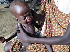 Cenas de horror: imagens mostram efeitos da crise humanitária que devasta o Sudão do Sul - Fotos - R7 Internacional ESTE PÓDERIA SER MEU IRMÃO MEU PAI MINHA MÃE MINHA FILHA ,MEU FILHO ,OU EU MESMO, QUE NASCEU NO SUDÃO. CONTUDO  TAMBÉM PODERIA SER VOCE. QUE ESTÁ LENDO ESTA NOTÍCIA,.. AGORA! asa.