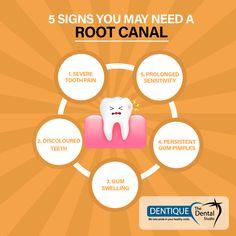 Root Canal Treatments in Cochin, Ernakulam - At Dentique Dental Studio Teeth Health, Dental Health, Dental Care, Kochi, Dental Studio, Dentist Quotes, Dentistry For Kids, Dental World, Dental Posters