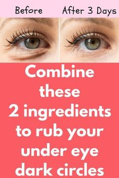 Combine these 2 ingredients to rub your under eye dark circles Today I will share an excellent remedy on how to remove dark circles naturally. This remedy will also get rid of puffy eyes, eyelashes, and eye bags. You must repeat this procedure 3 times in Dark Circle Remedies, Dark Circles Under Eyes, Eye Cream For Dark Circles, Potato For Dark Circles, Reduce Dark Circles, Dark Under Eye, Dark Eyes, Dark Skin, Tips Belleza
