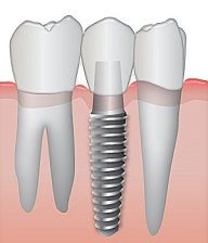 L' implantologia guidata per inserire impianti dentali per una protesi fissa in modo rapido e poco invasivo