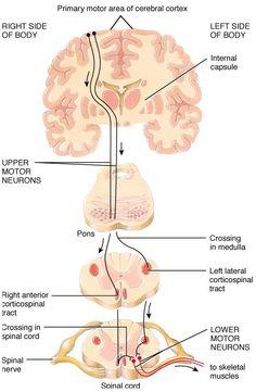 Cervical Radiculopathy Part 1 - Clinical Presentation — Rayner & Smale Brain Anatomy, Human Anatomy And Physiology, Medical Anatomy, Physical Therapy School, Neurological System, Radiculopathy, Motor Neuron, Cerebral Cortex, Neurone