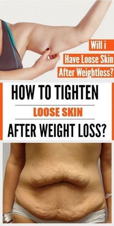 Will i have loose skin after i lose weight? Depends on age, gender, fitness level and genes. But better sagging skin, than fat-filled skin, rig… Loose Weight, Ways To Lose Weight, Weight Loss Tips, Losing Weight, Body Weight, Weight Gain, Freeletics Workout, Tighten Loose Skin, Tighten Stomach