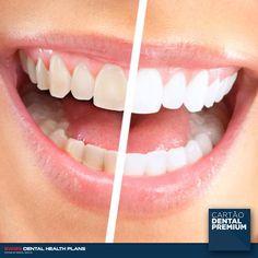Sabe o que inclui o Cartão Dental Premium? Se até então colocar um implante dentário não era fácil nem acessível a todos, com o CARTÃO DENTAL PREMIUM terá todas as condições para mudar de vida! Saiba como poderá usufruir de todos estes serviços: - Implantes dentários - Branqueamentos - Higienizações - Raio-X  - E ainda + de 75 outros tratamentos! www.cartaodentalpremium.pt #SwissDentalHealthPlans #CartãoDentalPremium #CartãoDeSaúde#Clínica #Implantes #Dentista