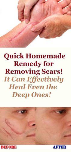 1447 Best Acne Remedies Diy images in 2019