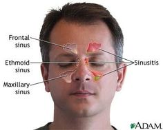 Natural Cure For Sinus Infection