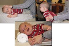 Pediatric Torticollis Stretches