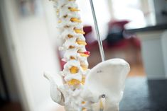 Ongoing #chiropractic maintenance care may offer significant #health #benefits, including but not limited to the management/relief of:  Back and Neck Conditions Leg Pain (Sciatica) Knee, Foot and Ankle Pain Shoulder or Elbow Pain Arm or Wrist Pain Carpal Tunnel Syndrome Migraine and Tension Headaches High blood pressure Sleep disorders Repetitive Stress Disorders Stress and Tension Disorders Fibromyalgia Bursitis Arthritis Chronic Injuries