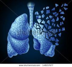 Lung Disease Stock Photos, Lung Disease Stock Photography, Lung Disease Stock Images : Shutterstock.com