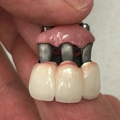 Mini 7 star case... it will be one piece screw retained implants!