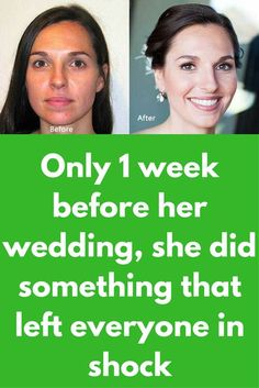 Only 1 week before her wedding, she did something that left everyone in shock Diy Beauty Treatments, Skin Treatments, Beauty Tips For Glowing Skin, Beauty Skin, Dark Skin Around Neck, Daily Beauty Routine, Beauty Regime, Before Wedding, Tan Skin