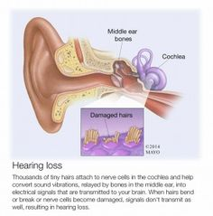 How is age-related hearing loss treated, other than a hearing aid? Is there a benefit to having hearing evaluated sooner as opposed to waiting until it gets even worse?