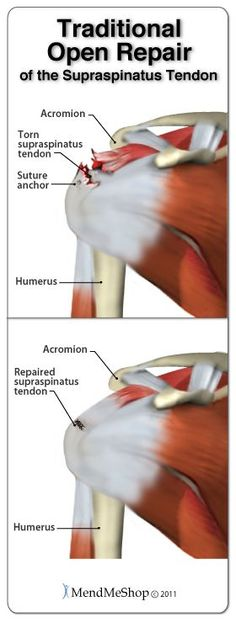 Traditional open repair surgery to repair the supraspinatus tendon of the rotator cuff. #rotatorcuffsurgery