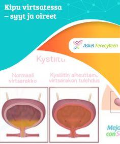 Kipu virtsatessa - syyt ja oireet   Kipu #virtsatessa johtuu yleensä #tulehduksesta #virtsaputkessa, rakossa tai munuaisissa  #Mielenkiintoistatietoa