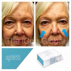 Within 2 minutes, Instantly Ageless reduces the appearance of under-eye bags, fine lines, wrinkles and pores, and lasts 6 to 9 hours. Under Eye Bags, Hooded Eyes, Best Face Products, Revolutionaries, Facial, Health Fitness, Join, Board, Beautiful