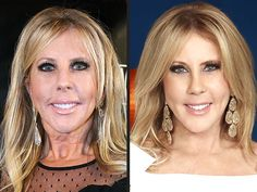 Housewives of Orange County: Vicki Gunvalson Reveals Post-Plastic Surgery Face Real Housewives of Orange County: Vicki Gunvalson Post-Plastic Surgery FaceBe Real Be Real may refer to: Plastic Surgery Quotes, Bad Plastic Surgeries, Plastic Surgery Gone Wrong, Orange County, Vicki Gunvalson, Facial Procedure, Skin Resurfacing, Celebrity Plastic Surgery, Chemical Peel