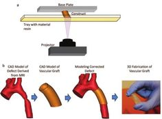 Scientists use 3D printing technology to treat congenital heart disease. Read more from www.cusabio.com