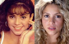 nariz operada de Shakira
