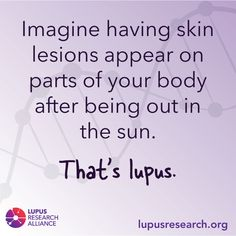 #ThatsLupus lets people know what lupus experiences can be like for some who have it. Share this graphic to spread awareness #LupusAwareness