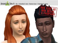 Zits as facepaint or skin detail at Around the Sims 4 via Sims 4 Updates