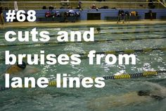 Swimmer Problems no one but swimmers understand this. people ask me where i get all the bruises from my arms and im like swimming. Then they just laugh...